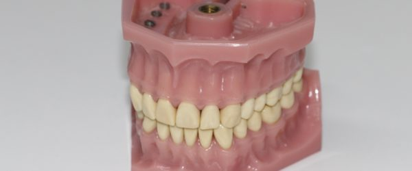 Full & Partial Dentures Providers in Racine, WI