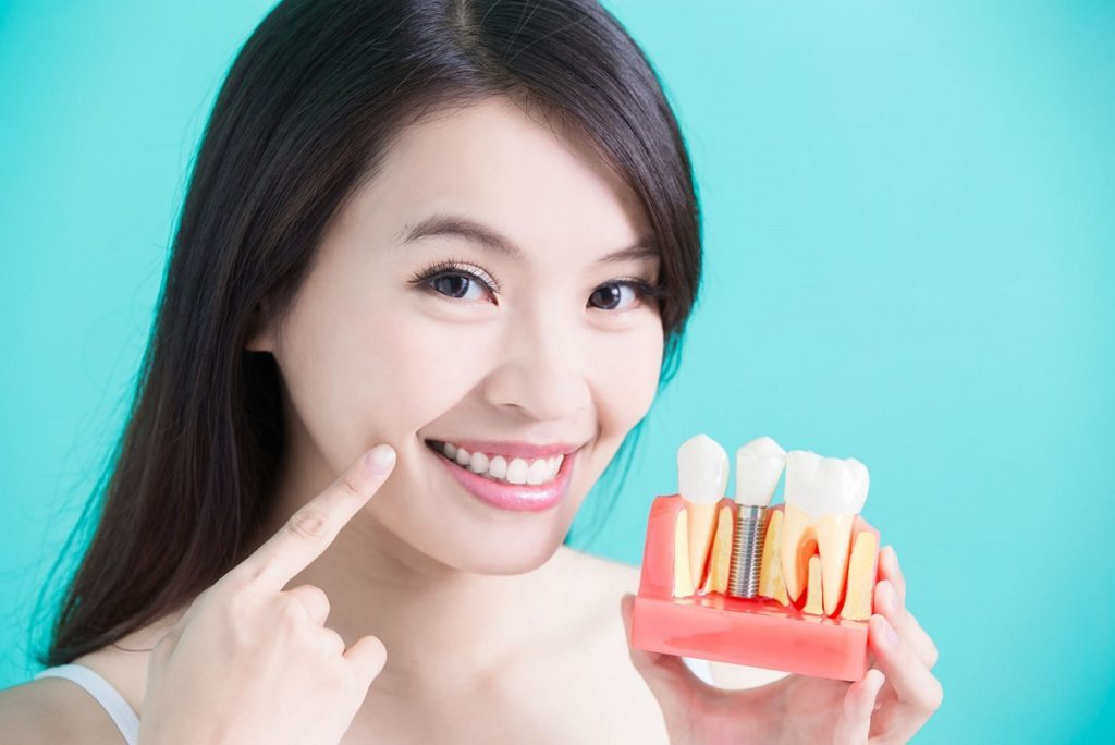 Dental Implants & Restoration Services in Racine, WI