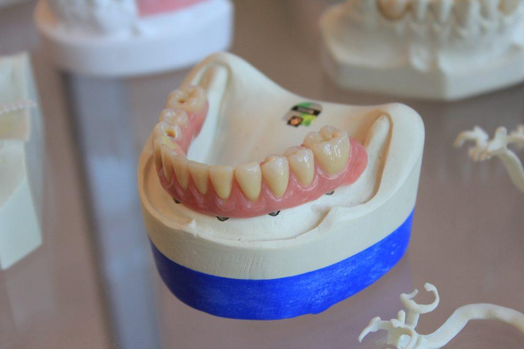 Dental Relines & Repairs Services in Racine, WI